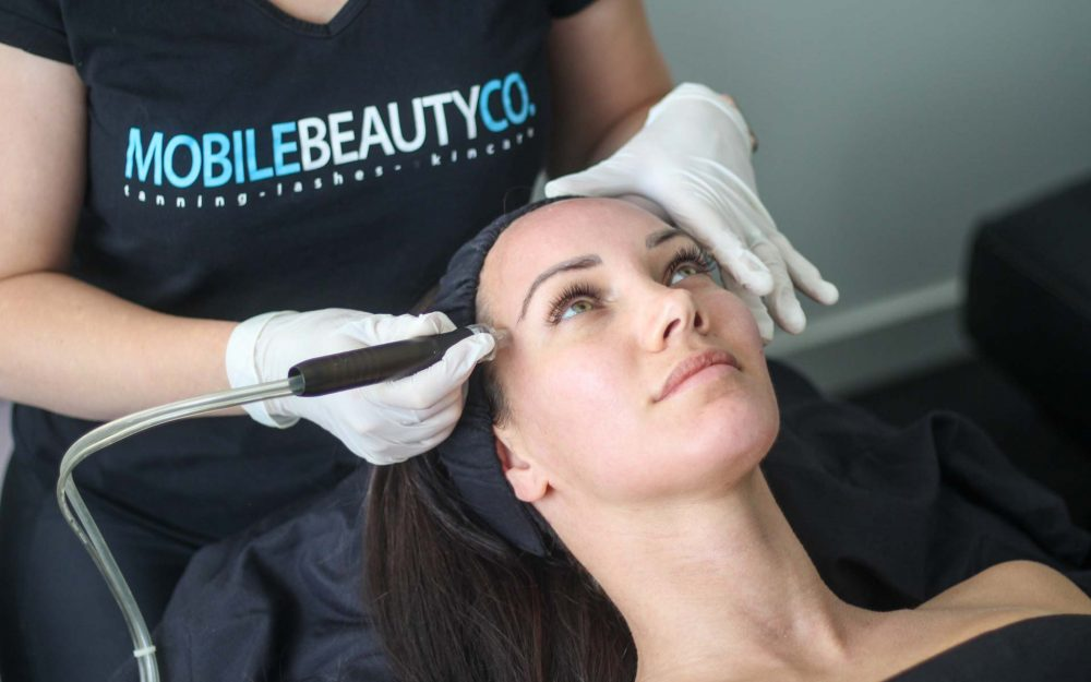 microdermabrasion-in-your-home